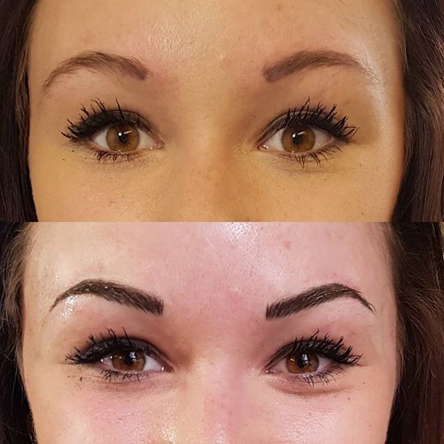 Before and after of brow correction by @lizzymorbid