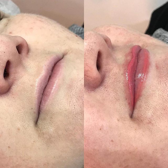 Follow @nextlevel_cosmetic_tattooing_  Lip line and blush to add definition to the lips and give the illusion of a 'fuller' lip. Colour will heal to a soft light pink for a subtle, natural look.